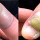 vitima de roer unhas